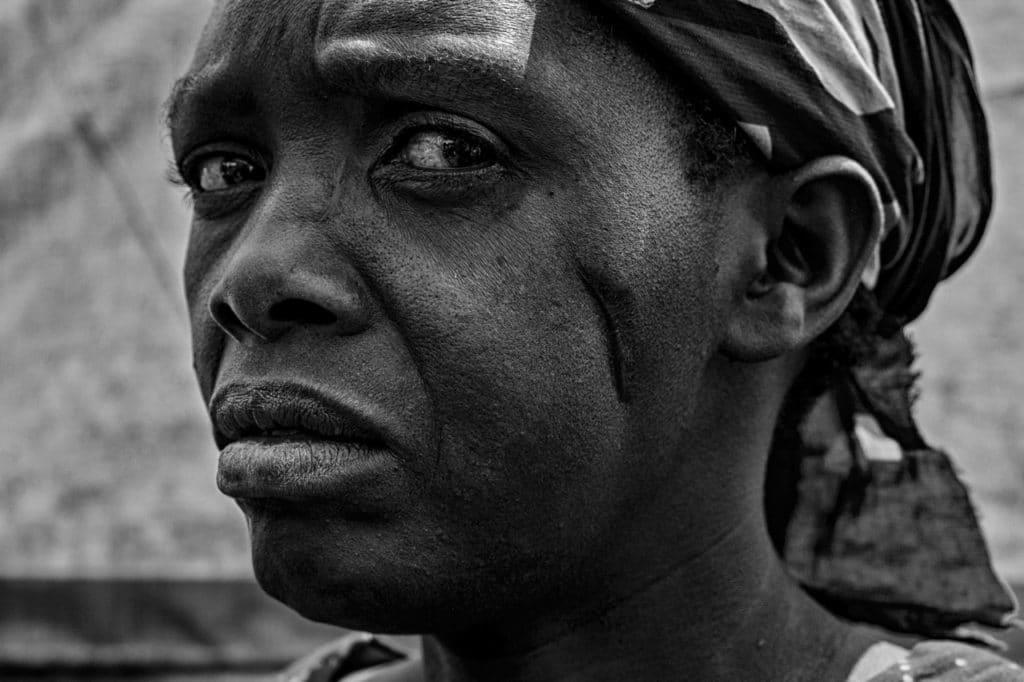 Feresita vive nel Campo rifugiati di Rubaya. Lei è stata ferita al volto, suo marito invece è stato ucciso durante la guerra.